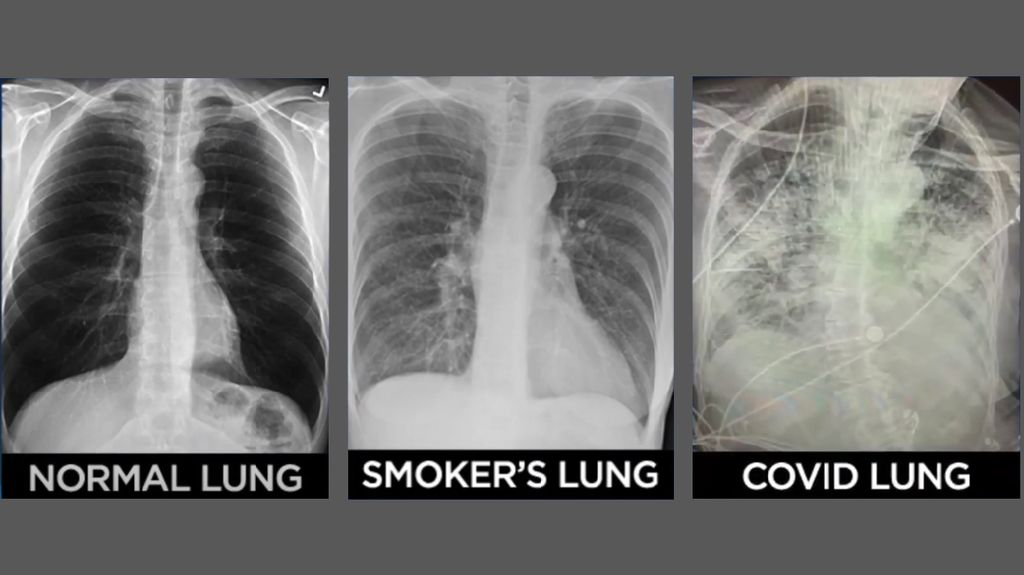 Beda Penampakan Paru-paru Pasien COVID-19 Vs Perokok, Parahan Mana?