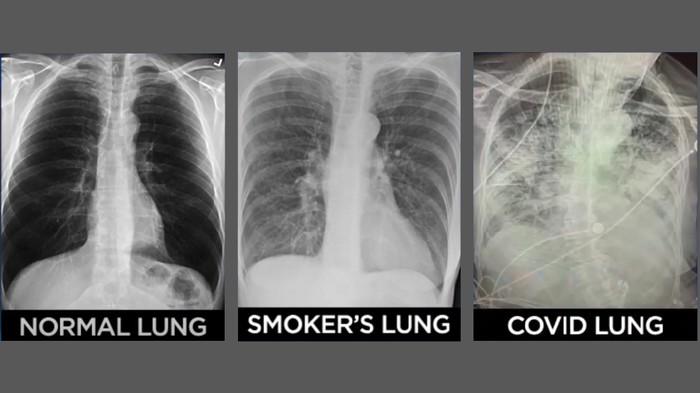 Beda penampakan paru-paru pasien covid-19 vs perokok