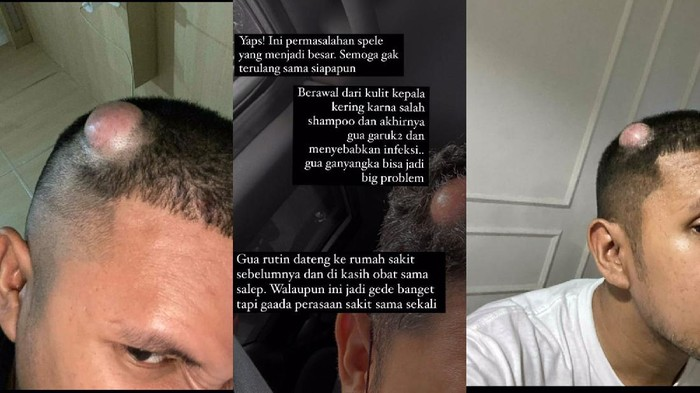 Viral di TikTok curhat pria idap tumor gara-gara keseringan garuk kepala.
