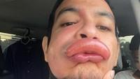 Aktor Ini Pamer Bibir Disengat Tawon, Fotonya Bikin Kasihan Sekaligus Ngakak