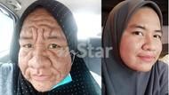 Hamil, Wanita Ini Terkejut Wajahnya Berubah Jadi Seperti Orang Tua