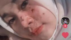 Viral Remaja Perawatan Facial Biar Bebas Jerawat, Endingnya Dirawat di RS