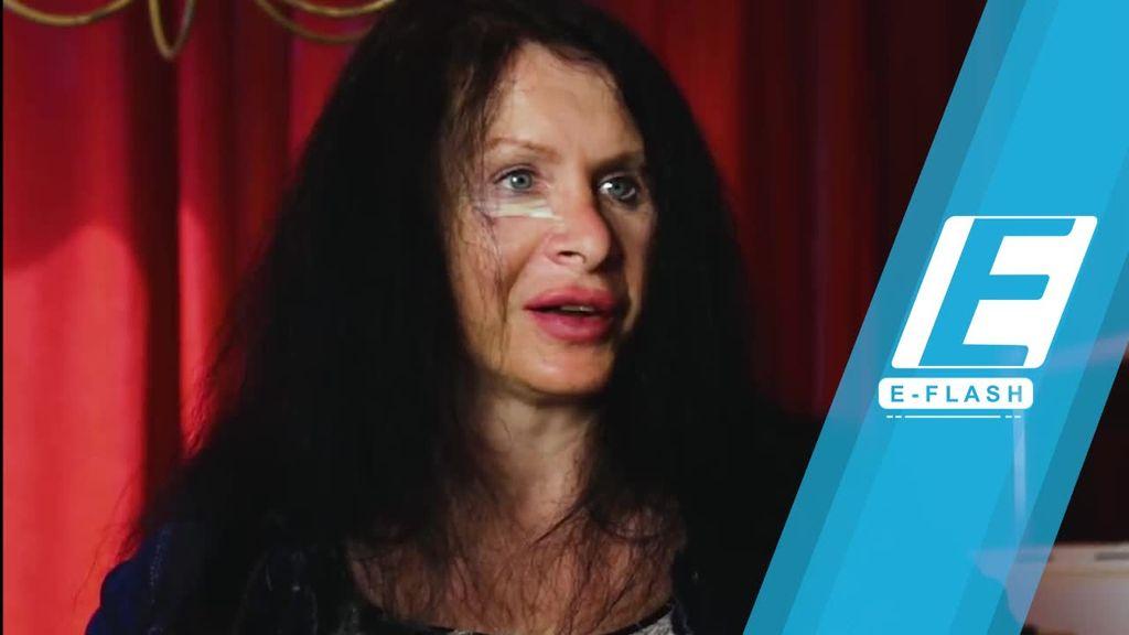 Duh! Aktris Ini Suntikkan Bakteri ke Tubuh Demi Awet Muda