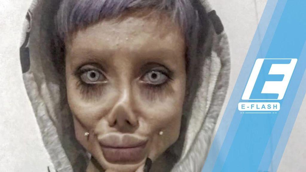 Terobsesi Angelina Jolie, Gadis Ini Nekat Oplas dan Diet Ketat