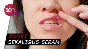 Netizen Ramai Soal BPOM Larang Albothyl untuk Sembuhkan Sariwan
