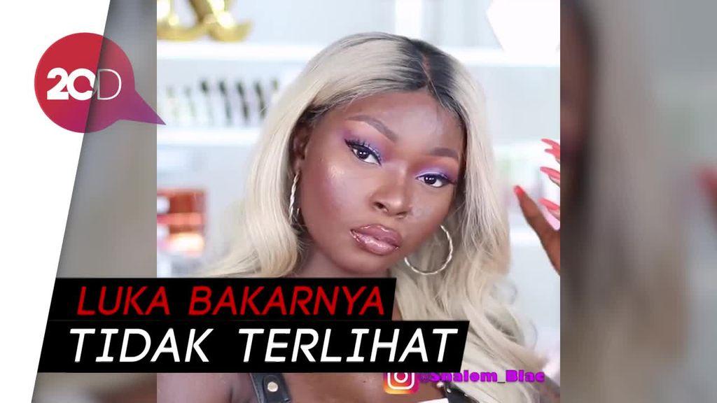 Viral! Miliki Luka Bakar, Gadis Ini Bangkit dengan Pelajari Makeup