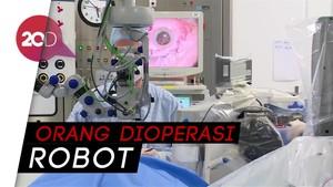 Pertama di Dunia! Robot Berhasil Operasi 12 Mata Pasien