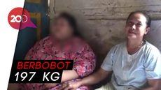 Malu Akibat Obesitas, Gadis di Lamongan Terpaksa Putus Sekolah