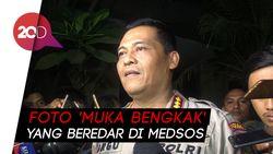 Atiqah Hasiholan Dimintai Keterangan soal Foto Ratna Sarumpaet