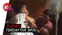 BPJS Kendari Klaim Cover Biaya Operasi Bayi Kembar Siam