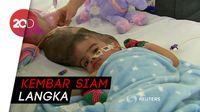 Operasi 55 Jam, Kembar Siam Pakistan Berhasil Dipisahkan