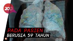 Ini Penampakan Paru-paru yang Terserang COVID-19