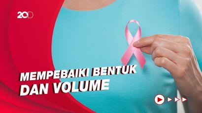 Mengenal Rekonstruksi Payudara untuk Penyintas Kanker