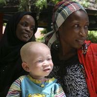 Penyebab Anak Lahir Albino