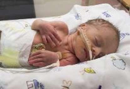 Menyelamatkan Bayi Prematur