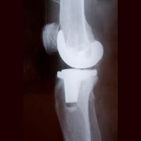 Apakah Sakit Pengapuran Tulang Harus Minum Obat Terus?
