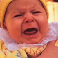 Kenapa Kulit Bayi Berwarna Kuning?