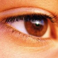 Mata Tidak Bening dan Terlihat Kuning