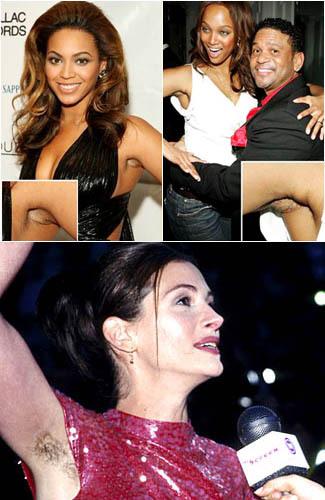 7 Selebriti yang Lupa Cukur Bulu Ketiak 1