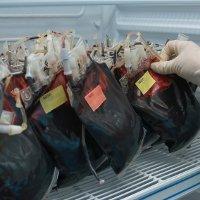 Bagi yang Mau Langsing, Donor Darah Bisa Bakar 600 Kalori!