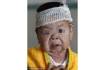 Kalau Kena Sindrom Ini, Bayi pun Jadi Keriput Seperti Nenek-nenek