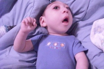 Ajaib! Bertahan Hidup 3 Tahun Meski Terlahir Tanpa Otak