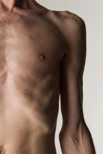 7 Orang yang Jadi Kerangka Hidup Gara-gara Anoreksia 1