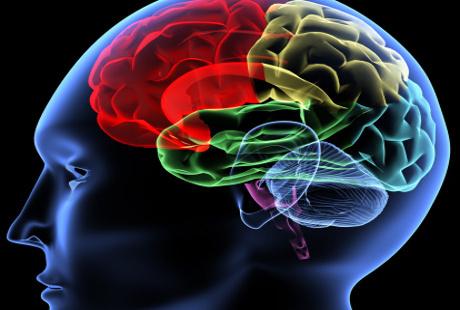 Salah Kaprah Cuci Otak Penangkal Stroke di Mata Dokter Saraf