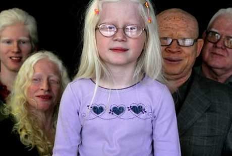 Menikah dengan Perempuan Albino, Apakah Anak Juga akan Albino?