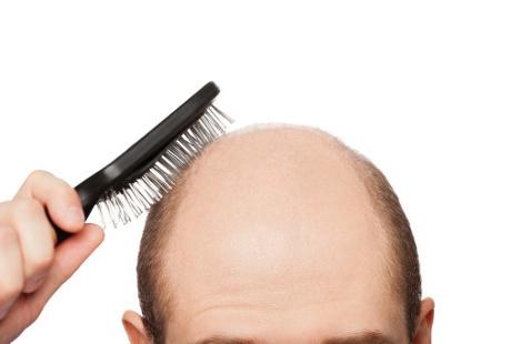 Solusi Mengatasi Rambut Rontok Agar Lebih Percaya Diri