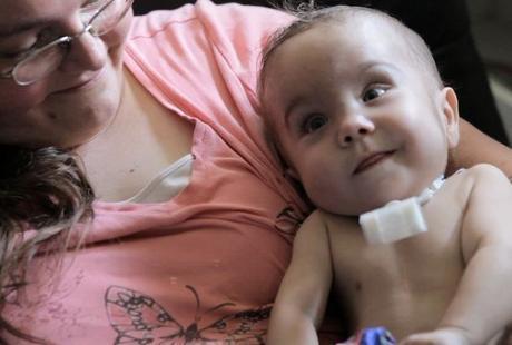 Tak Punya Batang Tenggorok, Nyawa Bayi Selamat Berkat Pipa Plastik