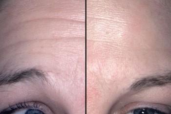 Before After, Beginilah Bentuk Wajah Setelah Terapi Botox Hingga Laser