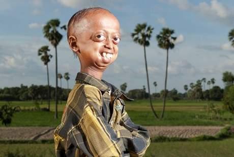 Ali Hussain, Remaja 14 Tahun yang Terlihat Seperti Kakek Pensiunan