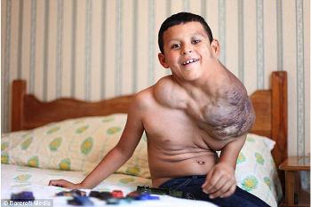 Inilah Jose Serrano, Bocah yang Tumor di Lehernya Mengecil Berkat Viagra