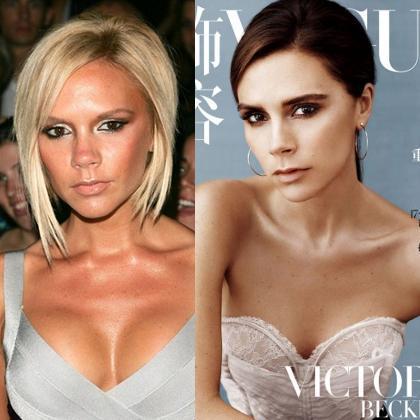 Victoria Beckham Ngaku Pernah Operasi Plastik Besarkan Payudara