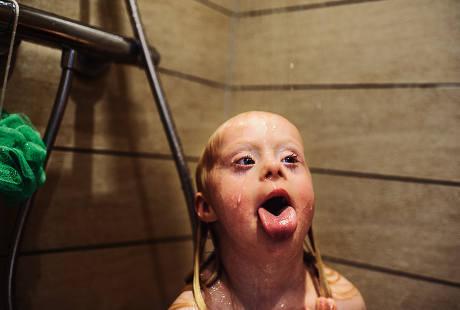 Foto-foto Menggemaskan Emmy, Bocah dengan Down Syndrome di Denmark