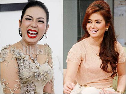 5 Selebriti Indonesia Dengan Gigi Putih Dan Rapi Karena Dilapisi Veneer