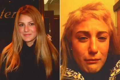 Rambut Nyaris Botak, Model Cantik Tuntut Salon Terkenal di ...