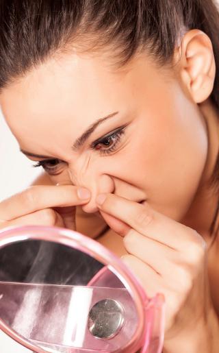 5 Cara Mengatasi Jerawat Di Hidung