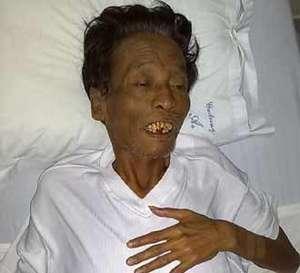 Pelawak Cholik Terbaring Lemah