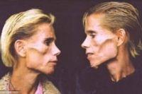 Clare dan Rachel Wallmeyer (41 tahun), pasangan kembar identik di Melbourne yang sama-sama mengidap anoreksia meninggal secara tragis baru-baru ini. Meski menghadapi ancaman maut karena berat badannya masing-masing hanya sekitar 25 kg, kematian akhirnya datang gara-gara rumahnya kebakaran dan keduanya terjebak dalam api. (Foto: youtube)