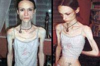 Lauren Bailey (26 tahun), gadis asal Inggris sangat terobsesi ingin kurus hingga nekat jalan kaki 12 jam sehari. Ia sukses menurunkan bobotnya sebanyak 19 kg, hingga bobotnya tidak lebih berat dari anak usia 5 tahun. Ia sampai dilarikan ke rumah sakit setelah hampir meninggal karena kurang nutrisi. Namun 10 tahun berikutnya, ia sembuh dari anoreksia dan berat badannya kembali normal. (Foto: Eastnews)
