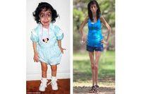Perempuan asal Texas, Lizzie Velasquez (23 tahun) terlahir tanpa jaringan adiposa yang berarti tubuhnya tidak membentuk lemak sama sekali. Meski porsi makannya normal, berat badannya hanya berkisar di 28 kg dan sering di-bully dengan julukan perempuan terjelek di dunia karena penampilannya menyeramkan. (Foto: Barcroft Media)