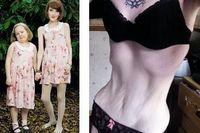 Seorang ibu di Inggris, Rebecca Jones (26 tahun) memiliki bobot hanya 31 kg. Bobotnya bahkan lebih ringan dari anak perempuannya yang baru berusia 7 tahun. Rebecca adalah seorang pengidap anoreksia, sejenis gangguan pola makan yang membuatnya tidak mau makan agar kurus seperti boneka Barbie. (Foto: Dailymail-Closer)