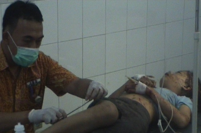 Korban Luka Luka Kecelakaan Di Baturaden Dirawat Di Rumah Sakit Dkt