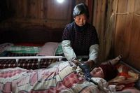 Dalam sehari, mereka harus bergantian untuk memompa paru-paru Xuepeng hingga ribuan kali. (Foto: AFP)