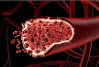 Granulomatosis Wegener, Peradangan Pembuluh Darah