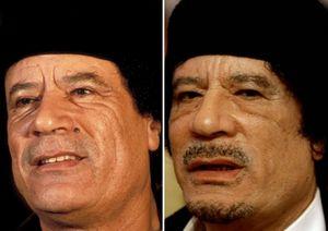 Muammar Khadafi: Operasi Plastik Tanpa Bius