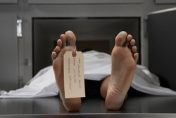 Patut Waspada, Epilepsi Juga Bisa Sebabkan Kematian Mendadak