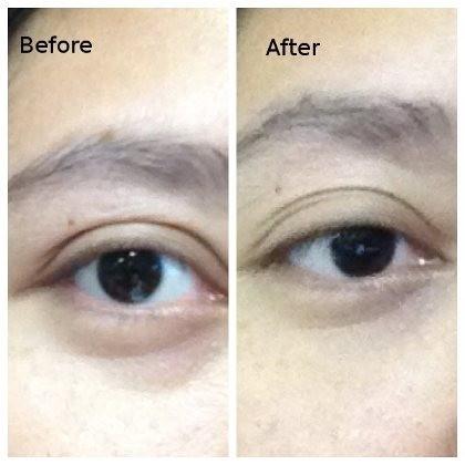 Foto: Before-After Tampilan Kantung Mata